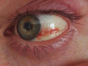 geplatzte Ader Auge